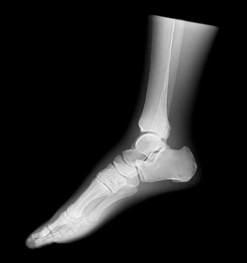 Röntgen-Teilphantom mit künstlichen Knochen - Linker Fuß, opak 2