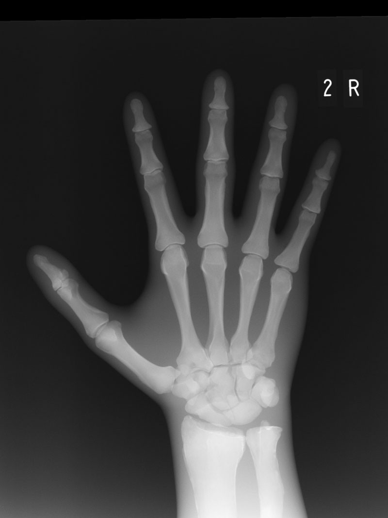 Modulares Ganzkörper Röntgenphantom