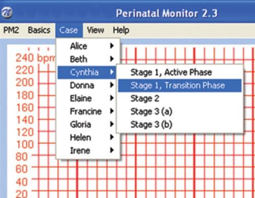 Geburtsmonitor CD ROM mit Szenarien-Erstellungsoption