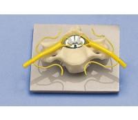 Wirbel mit Rückenmark