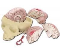 Schädelmodell mit Gehirnerkrankungen
