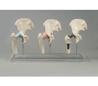 Hüft-Implantat-Modell