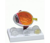Augenmodell mit Katarakt