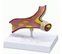 Arteriosklerose-Modell, 1-teilig