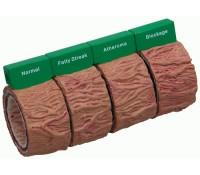 Arterienmodell, 4-teilig