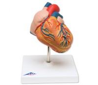 Klassik-Herz mit linksventrikulärer Hypertrophie (LVH), 2-teilig