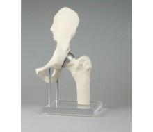 Hüftgelenk mit Schalenprothese
