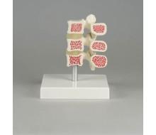 Osteoporose-Wirbel-Modell, 3 Wirbel