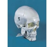 Dental-Schädel, 4-teilig