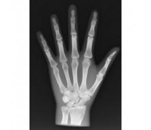 Röntgenphantom Hand, opak