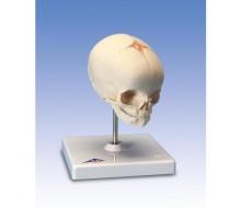 Fetus-Schädel, auf Stativ