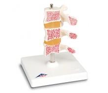 Osteoporose Modell