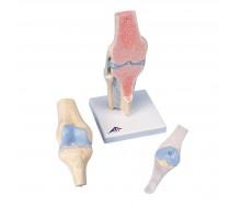 Gelenkschnitt-Modell des Knies, 3-teilig
