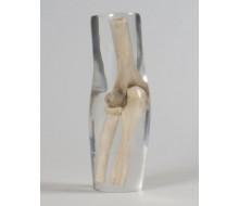 Röntgenphantom Ellenbogen, transparent