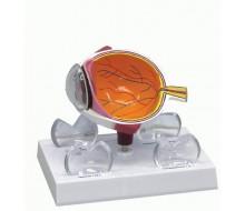 Augenmodell mit Hornhauterkrankungen