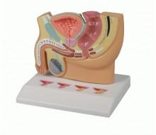Männlicher Beckenschnitt mit Prostataerkrankungen