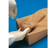 No-Scalpel-Vasektomie (NSV)-Modell