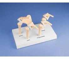 4-Stadien-Osteoarthritis (OA) Schulter 1