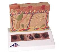 Hautkrebs-Modell