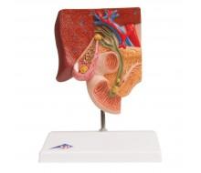 Gallensteinmodell