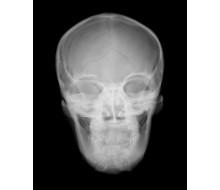 Röntgen-Teilphantom mit künstlichen Knochen - Kopfphantom, transparent 1