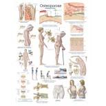 """Lehrtafel """"Osteoporose"""" 1"""