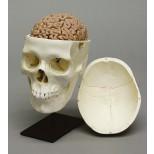 Menschliches Gehirn, Naturabguss 2