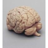 Menschliches Gehirn in Frontalschnitten 2