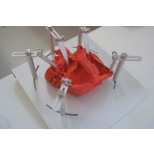 Herz Dicom komplex, rot 3