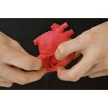 Pädiatrisches Herz mit Atriumseptumdefekt (ASD) 2