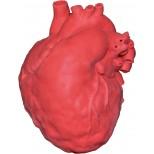 Pädiatrisches Herz mit Atriumseptumdefekt (ASD) 1