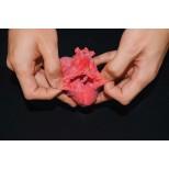 Pädiatrisches Herz mit korrigierter Transposition der großen Arterien (TGA) und Ventrikelseptumdef 2