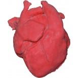 Pädiatrisches Herz mit korrigierter Transposition der großen Arterien (TGA) und Ventrikelseptumdef 1