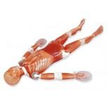 Frakturenhand mit Unterarm für Modulares Ganzkörper Röntgenphantom 4